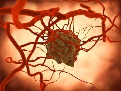 ساخت نانوذرات شناسایی کننده تومورهای سرطانی در رفسنجان